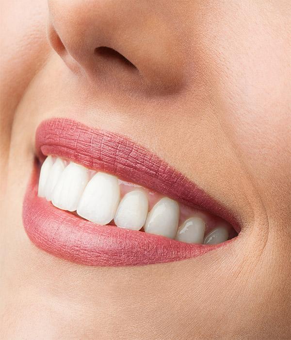tratamiento blanqueamiento dental Granada