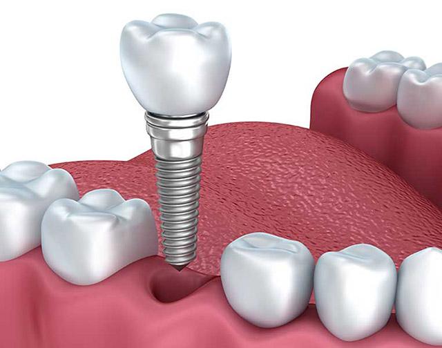 Dentista implante dental Granada