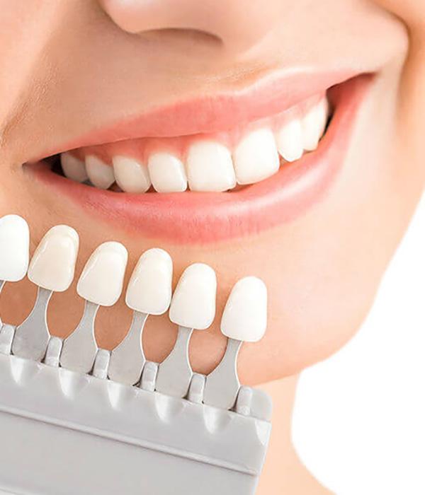 Estetica dental Granada
