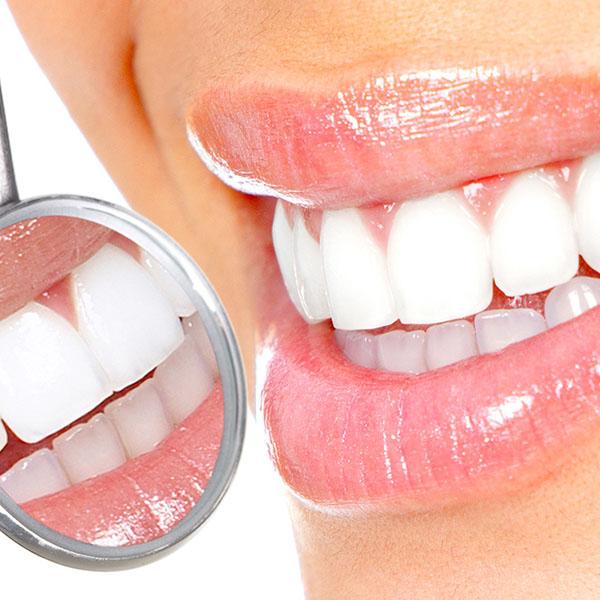 dentista estetica dental Granada