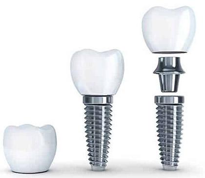 protesis dental fija granada
