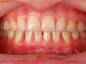 tratamientos periodoncia en granada